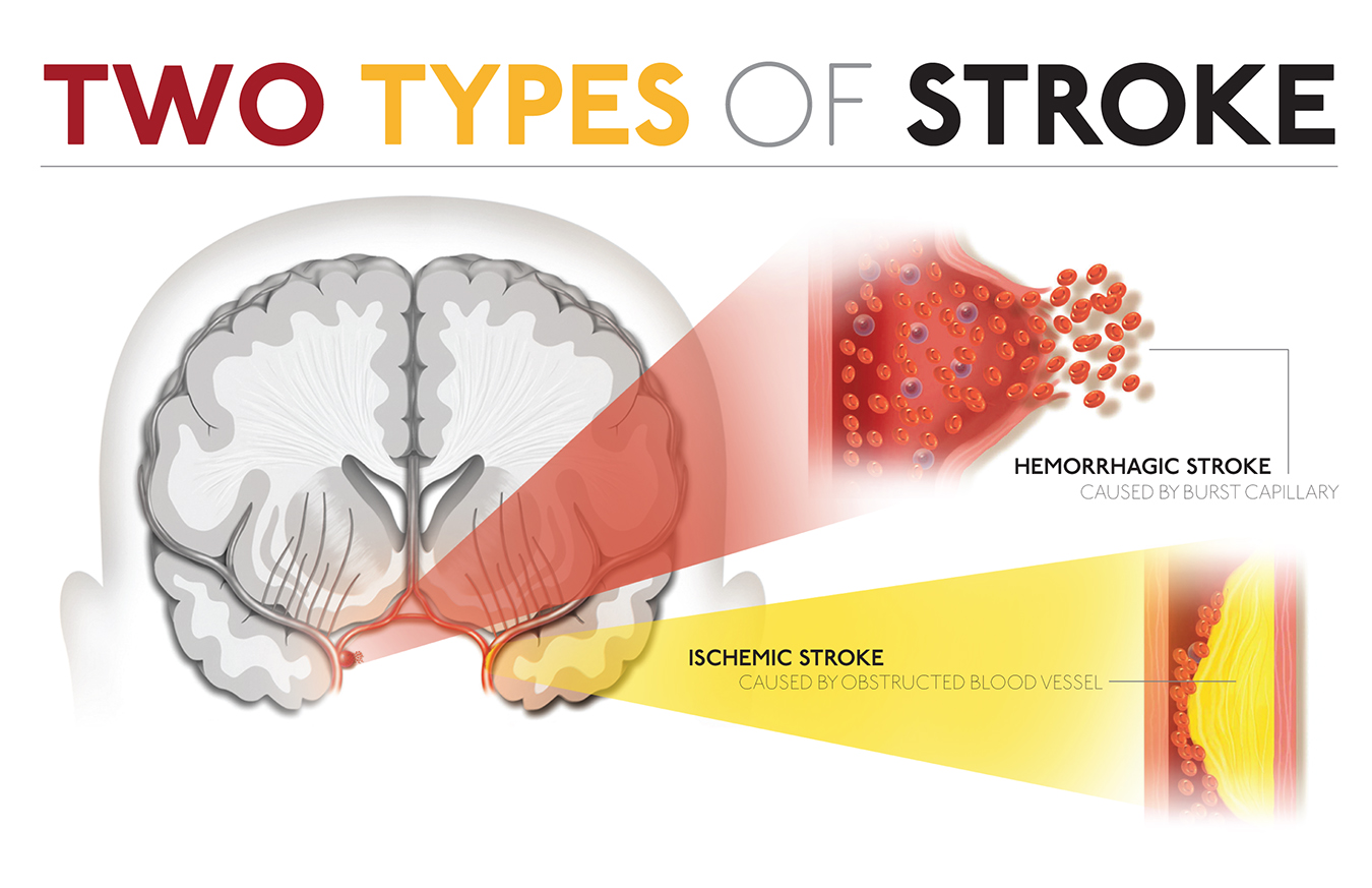 cardiovascular accident or stroke Read about strokes, a serious and life-threatening medical condition that occurs  when the blood  this can lead to brain injury, disability and possibly death.